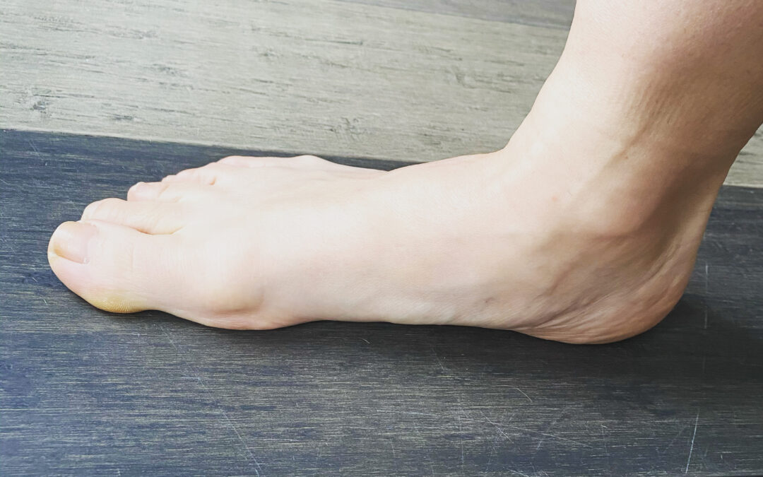 """Is it """"Bad"""" to Have Flat Feet?"""